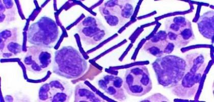Bakterie delftia acidovorans žijí na povrchu biofilmů které